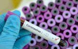 تحقیق برای ساخت واکسن کرونا در دانشگاه علوم پزشکی ایران آغاز شد